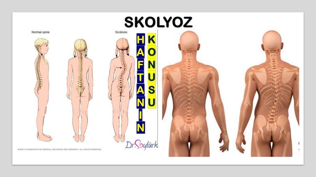 Skolyoz Uzm. Dr. Yasemin SOYTÜRK ÖZSEREN