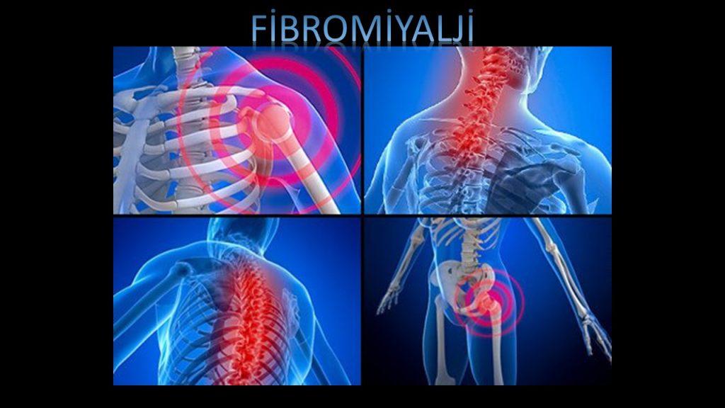 Fibromiyalji