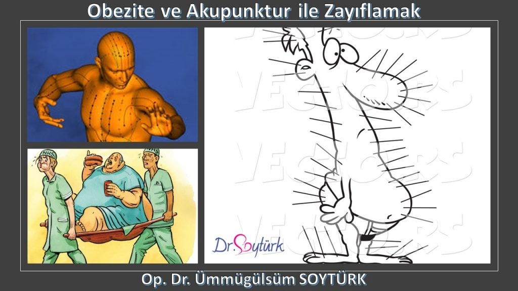 Obezite ve Akupunktur ile Zayıflamak, 2019, Op. Dr. Ümmügülsüm SOYTÜRK, Ankara